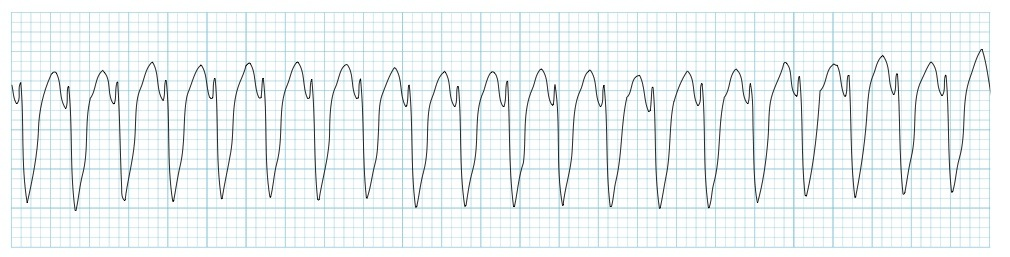 an introduction to the analysis of ventricular tachycardia Ventricular tachycardia exhibits 4 or more ventricular ectopic beats at a hr of 150-200bpm it results from two possible mechanisms: a latent ventricular focus/ enhanced automaticity in a ventricular pacemaker.