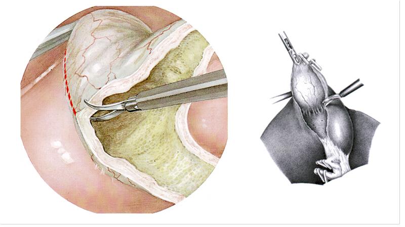 Операция Холецистэктомия Диета. Жизнь после удаления желчного пузыря: важные советы, плюсы и минусы, диета, запрещенные и разрешенные продукты