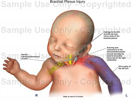 brachial plexus injury birth - photo #20